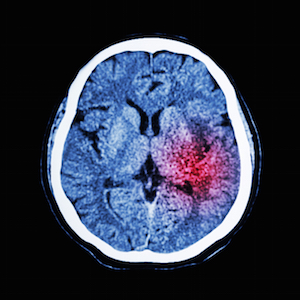 Brain Injury Law